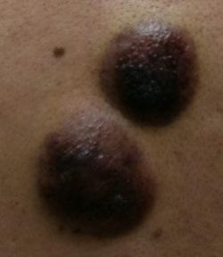 Blastic Plasmacytoid Dendritic Cell Neoplasm lesions