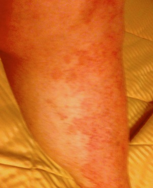Graft versus Host of the skin